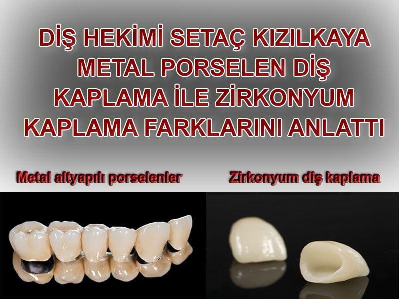 Zirkonyum diş kaplama ile porselen diş kaplama farkı