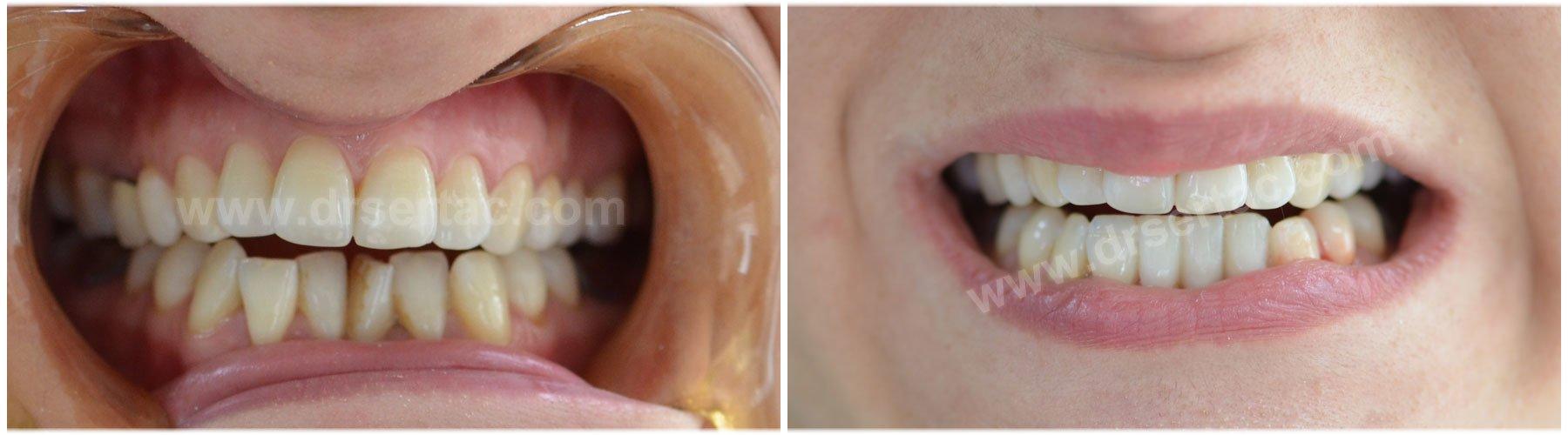 Alt ön zirkonyum diş kaplama örnek