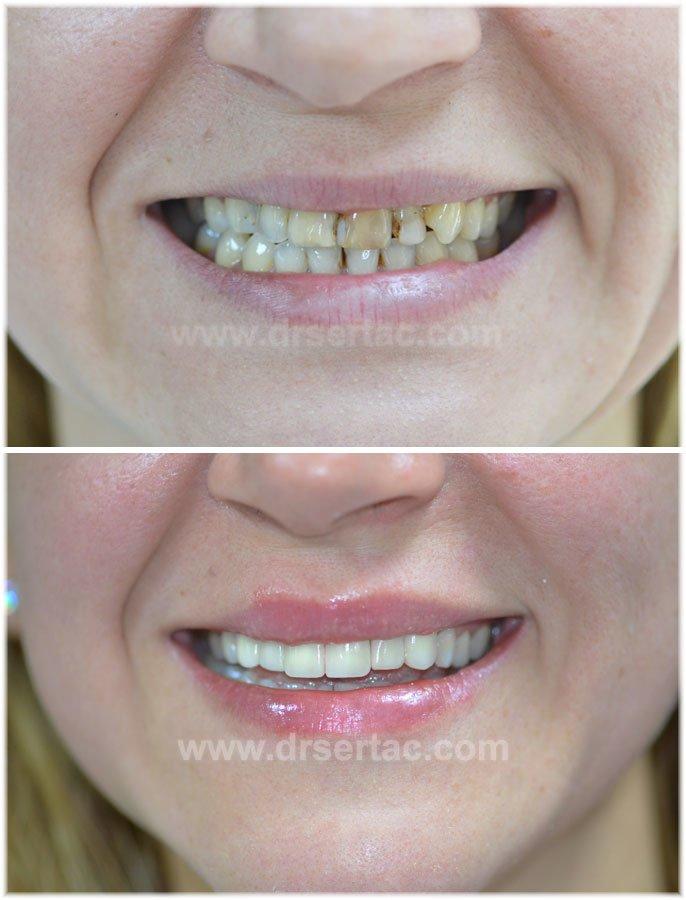 Ön diş için zirkonyum diş kaplama